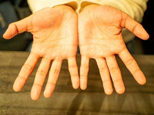 手相のしわが多い人は神経質・せっかちなタイプ?